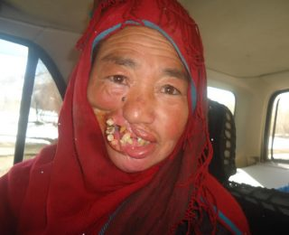 Without Basic Care, a Toothache Becomes a Deformity